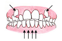 Crowded or Overlaped Teeth