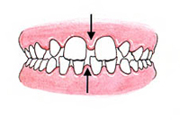 Large Gaps Between Teeth